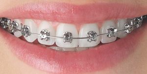 4 tips for braces care